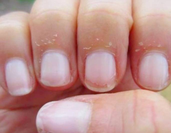 الجلد حول الأظافر