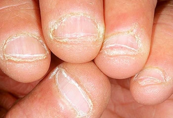 جلد الأظافر
