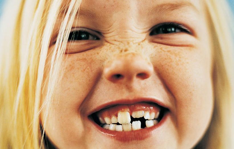أسنان الأطفال