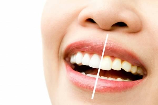 فوائد تدليك الأسنان
