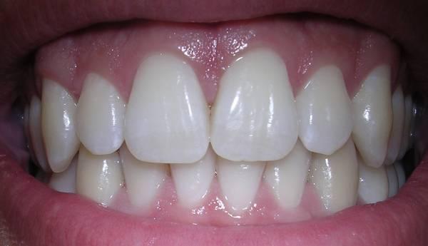 سبب تسوس الأسنان