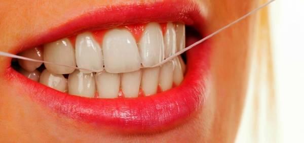 فوائد خيط الأسنان
