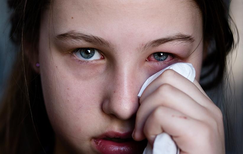 طب الأعشاب التهاب العين