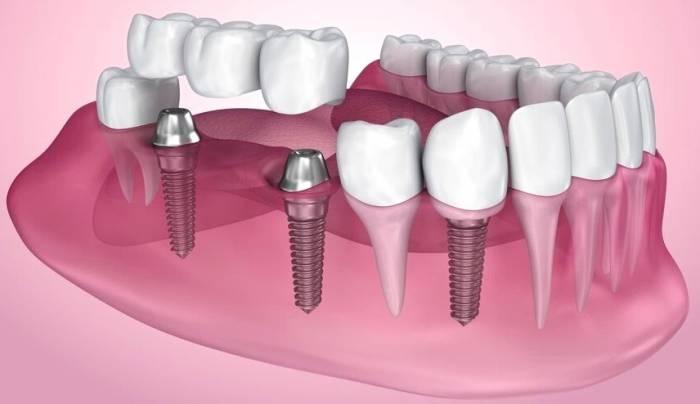 كل شيء عن Implant أو زراعة الأسنان