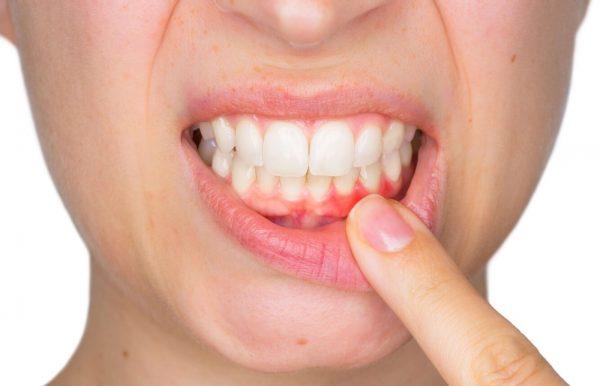 1578955825 54 ما هي أعراض وأسباب وجع الأسنان؟ أكو وب