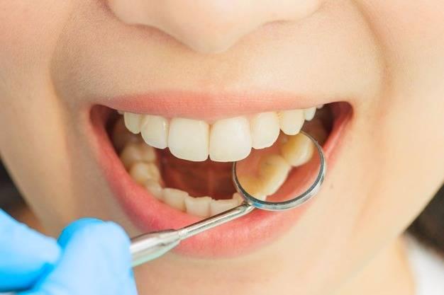 إصلاح الأسنان الصفراء