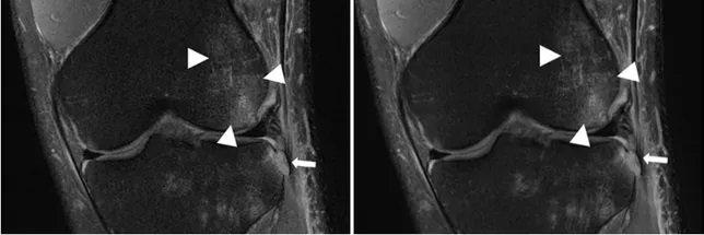 صورة التصوير بالرنين المغناطيسي للركبة