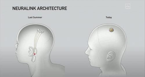 مقارنة بين Neuralink 2019 و 2020