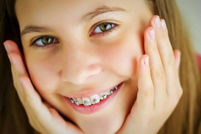 تقويم اسنان الاطفال