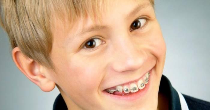 العمر التقويمي لأسنان الطفل