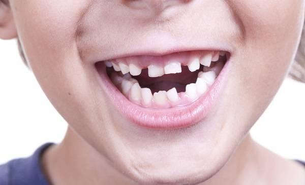 مساحة فارغة بين الأسنان