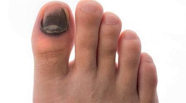 أصابع سوداء