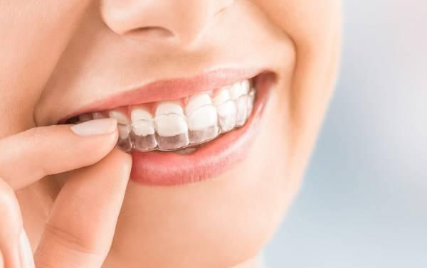 ما هو الحارس الليلي للأسنان وما فوائده أنواع