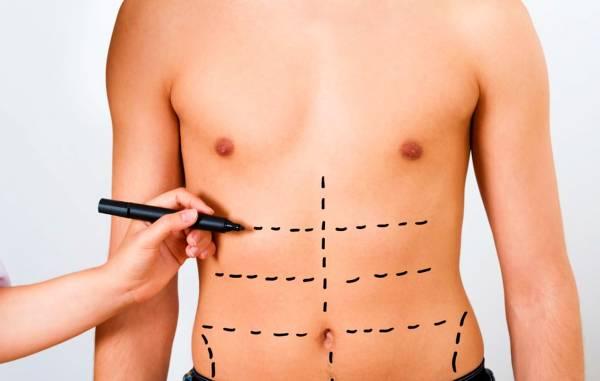 عمليات شفط الدهون التجميلية