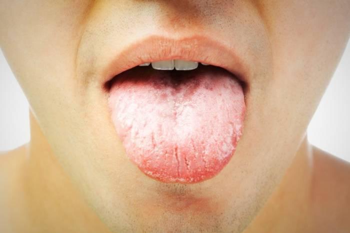 سبب خدر الفم