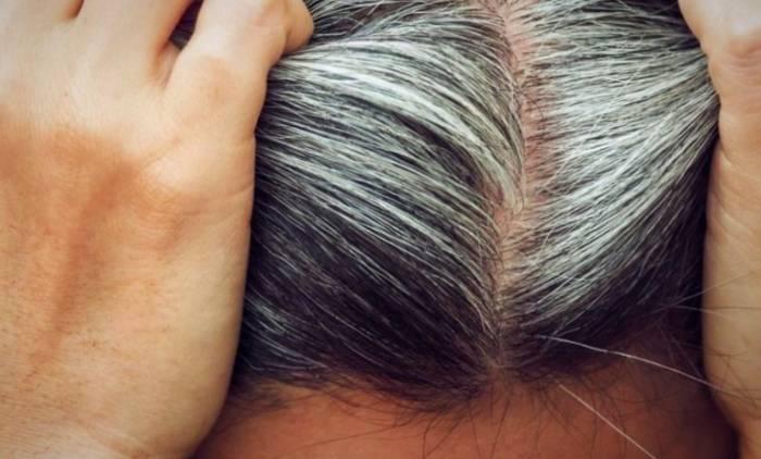 علاج تبييض الشعر