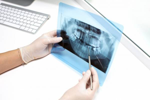 فحص الأسنان