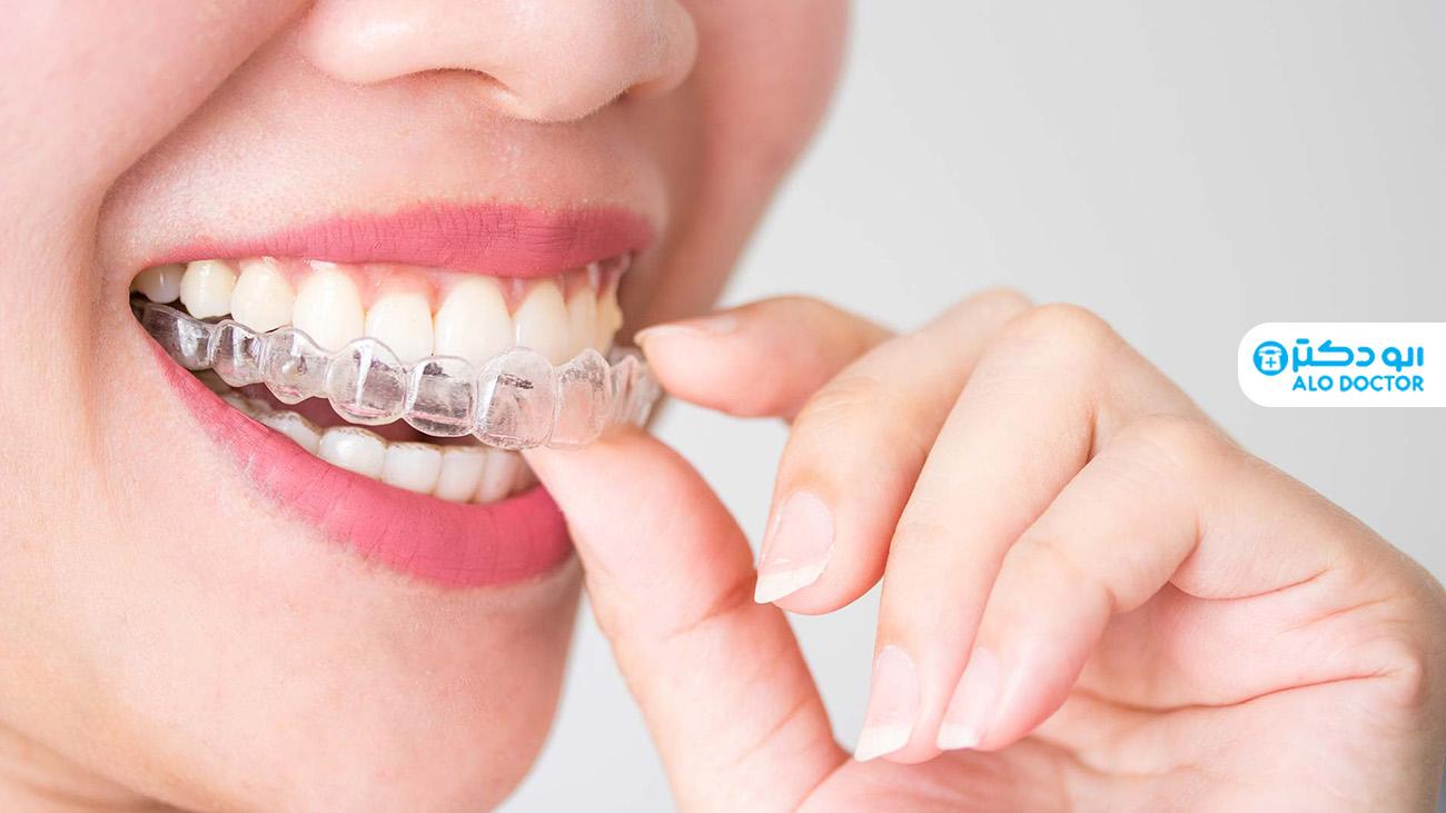 1618918147 888 ما هو تقويم الأسنان وكيف يساعدك؟ أكو وب