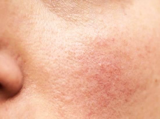 التهاب الجلد