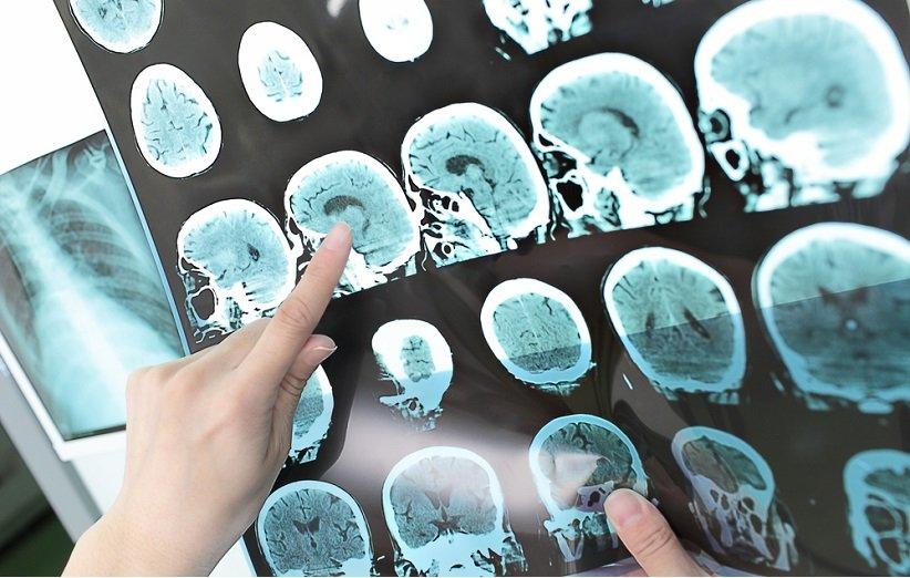 مرض التصلب العصبي المتعدد