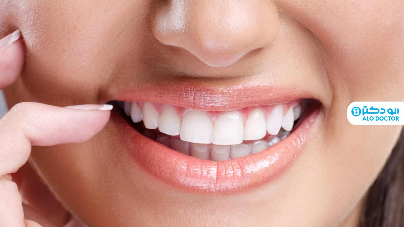1620979151 375 تبييض الأسنان بأبسط الطرق المنزلية أكو وب