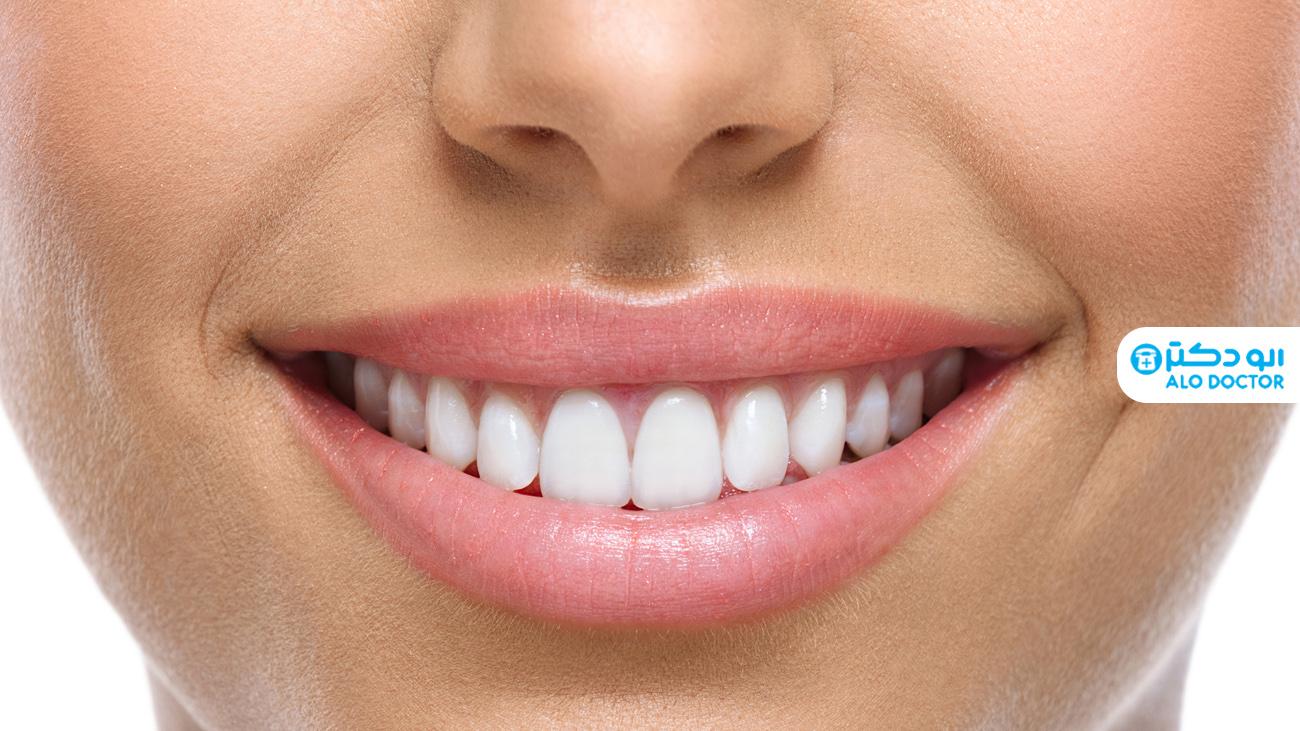 1620979151 446 تبييض الأسنان بأبسط الطرق المنزلية أكو وب