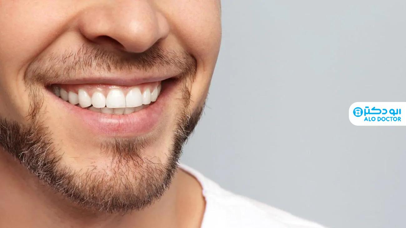 1620979151 657 تبييض الأسنان بأبسط الطرق المنزلية أكو وب