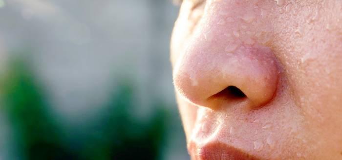 علاج تعرق الوجه