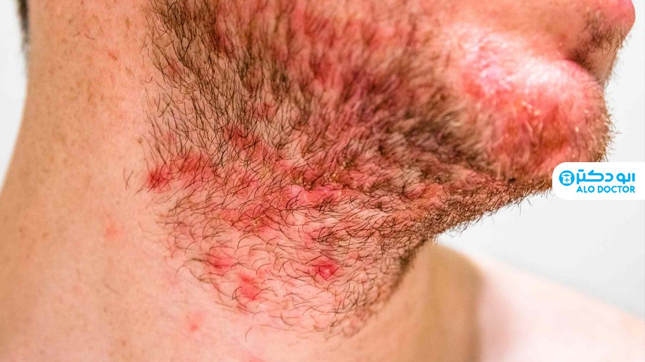 1622206492 373 ما هو التهاب الجلد الدهني وما أعراضه؟ أكو وب