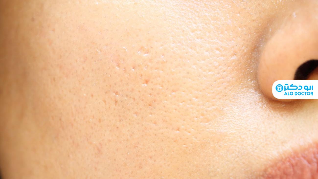 1624313695 892 ما الذي يسبب تسوس الجلد؟ أكو وب