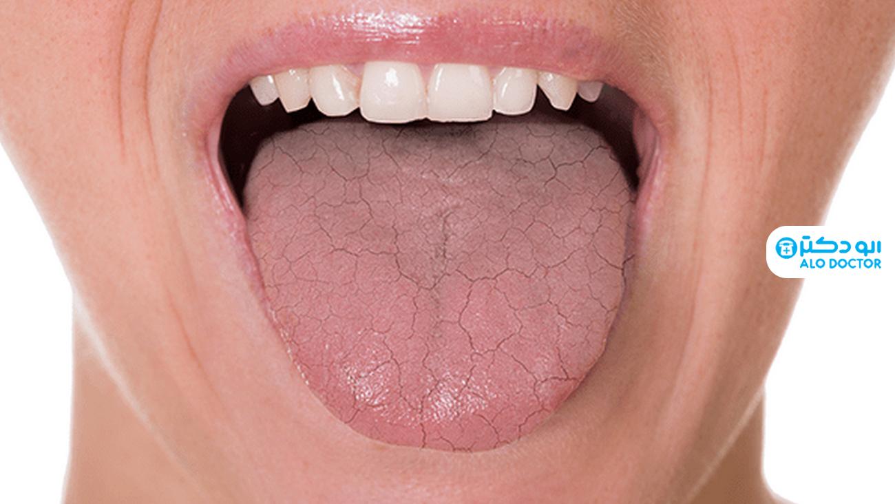 1633294281 127 ما الذي يسبب جفاف الفم أعراضه؟ أكو وب