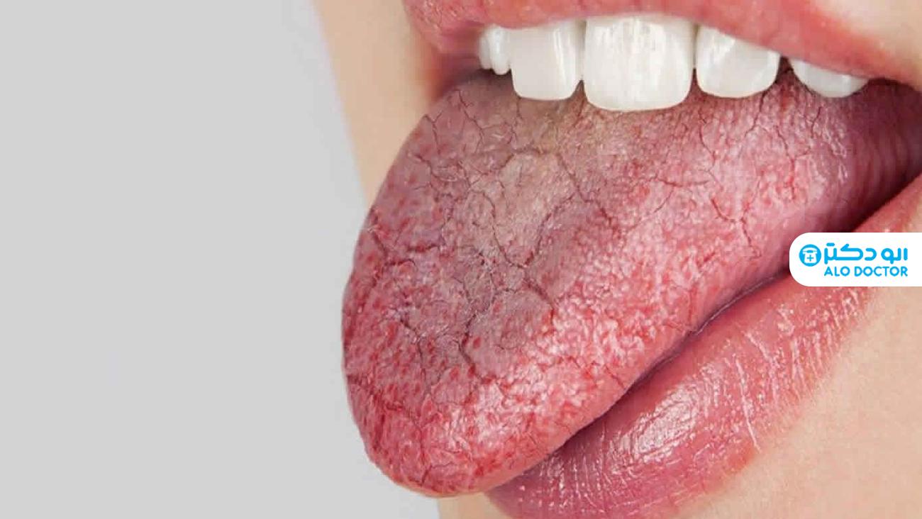 1633294281 78 ما الذي يسبب جفاف الفم أعراضه؟ أكو وب